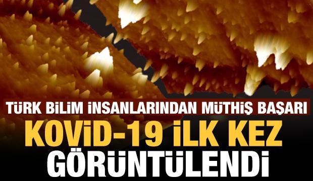 Koronavirüs, Türk bilim insanları tarafından yerli süper mikroskopla görüntülendi