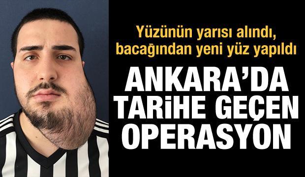 Ankara'da tarihe geçen operasyon: Yüzünün yarısı alındı, bacağından yeni yüz yapıldı
