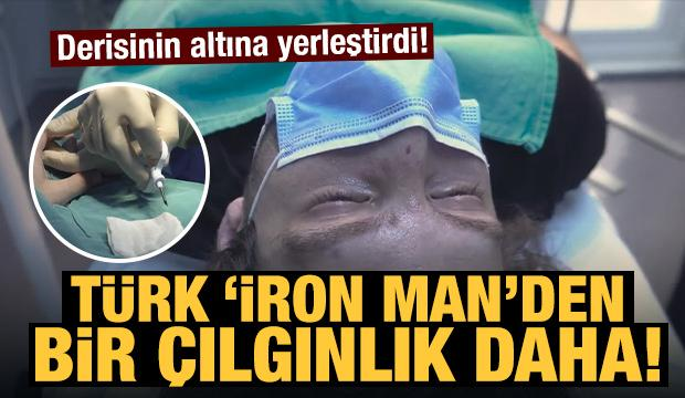 Türk 'Iron Man'den bir çılgınlık daha! Derisinin altına yerleştirdi